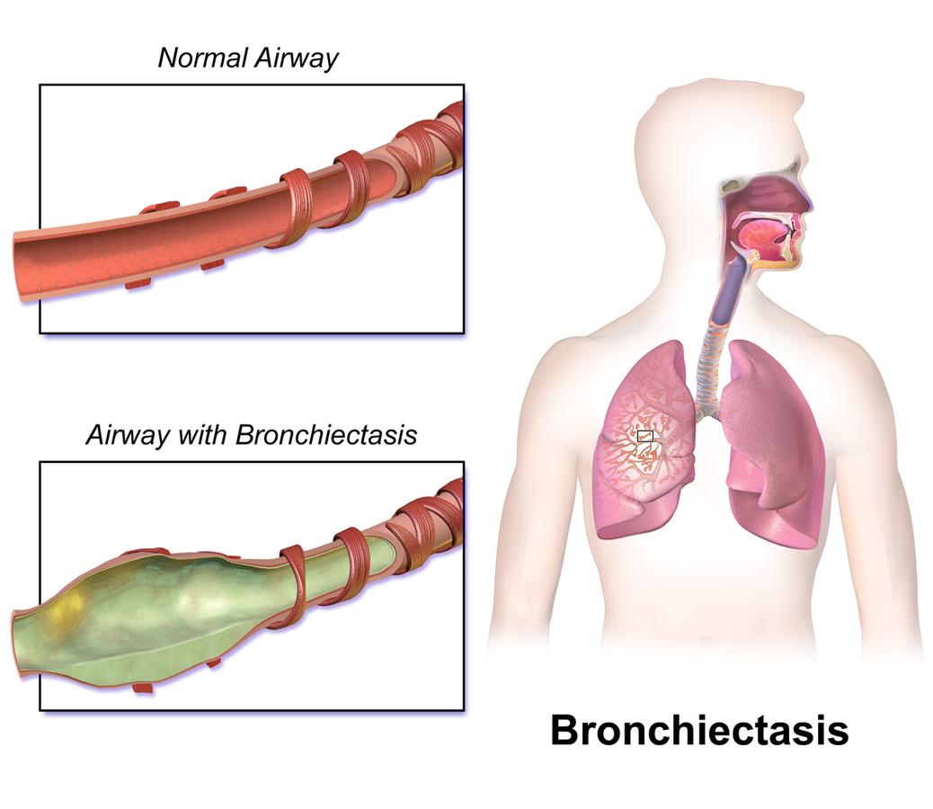 Bronchiectasis showing the widening of the airways